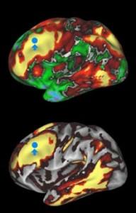En la parte superior, las áreas amarillas y rojas están estructuralmente conectadas al área indicada con el punto azul. En la parte inferior, las áreas amarillas y rojas son las que están funcionalmente conectadas al punto azul.