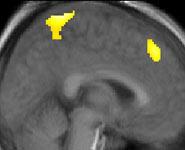 Nuestra actividad neuronal tiende a ser estimulada por los errores de nuestros competidores.