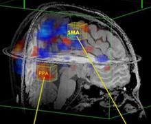 El escaneo ilumina las áreas que están más activas durante dos procesos de   pensamiento.