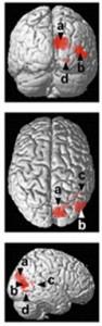 El fMRI muestra subregiones especificas del occipital en personas ciegas que fueron preferencialmente activadas en el procesamiento espacial de sonidos