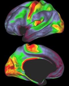 Las áreas rojas y amarillas indican concentración de mielina