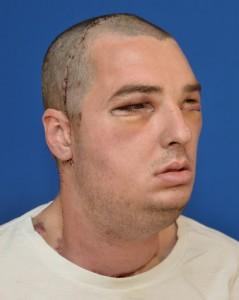 Paciente después de la cirugía