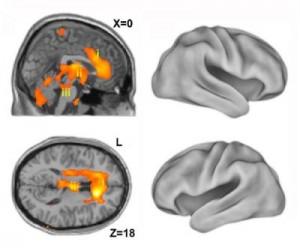Imágenes del cerebro en el proceso de recuperación de la anestesia al estado consciente muestran porciones del cerebro primitivo activadas primeramente.