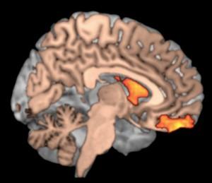 Altos niveles de dopamina se muestran en color naranja y amarillo, se encontraron en la corteza pre-frontal en el cerebro de personas motivadas (Crédito: Zald Lab)