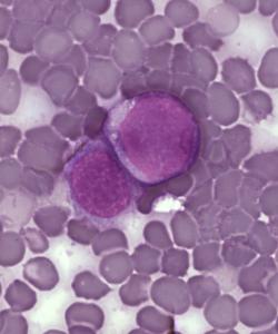 Células de leucemia (crédito: PLoS/Wikimedia Commons)