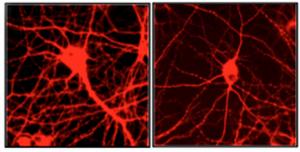 La expresión de un sólo gen (GATA1) disminuyó dramáticamente las conexiones sinápticas en el cerebro (derecha). Científicos de Yale creen que esto podría explicar el por qué personas con estrés crónico y depresión sufren pérdida del volumen cerebral. (Crédito: Yale University)