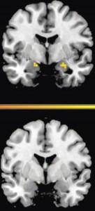 La actividad en la amigdala predice el regreso del miedo y se relaciona con recuerdos de temor. Sin interrupción de la reconsolidación (arriba), el miedo (amarillo) regresa. Con interrupción (abajo), el miedo no se presenta.  (Crédito: T. Agren, J. Engman, A. Frick, J. Bjorkstrand, E.-M. Larsson, T. Furmark, M. Fredrikson/Science)