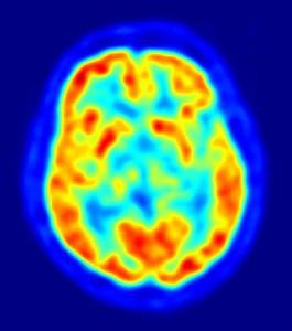 Escaneo del cerebro humano (PET) (crédito: Jens Langner/Wikimedia Commons)