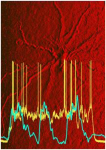 En el fondo se encuentra una neurona de la corteza entorrinal. El trazo azul-verde muestra una oscilación lenta al tiempo que el trazo amarillo muestra una actividad persistente de la neurona, incluso cuando las entradas provenientes de la neocorteza estaban en silencio.  (Credito: Thomas T. G. Hahn, et al./UCLA)