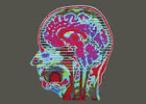 Máquinas que leen el pensamiento (crédito: Wellcome Images)