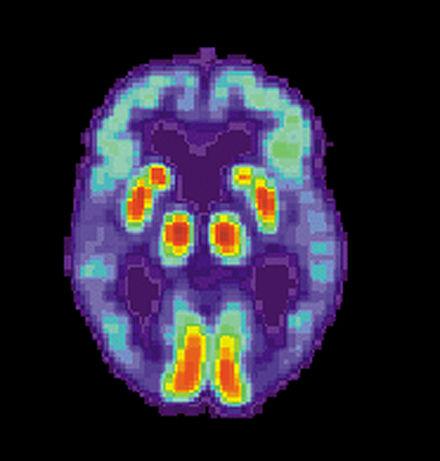 Scan PET del cerebro de una persona con enfermedad de Alzheimer, mostrando una pérdida de función en el lóbulo temporal.  (Crédito: Wikimedia Commons)