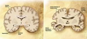 Comparación de cerebros en la enfermedad de Alzheimer. (crédito: Wikimedia Commons)