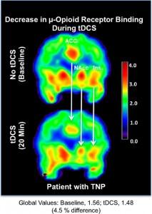 Disminución de uniones de receptor mu-opioide asociadas con la estimulación transcranial de corriente directa. (Crédito: Marcos Fabio Dos Santos et al./Frontiers in Psychiatry)