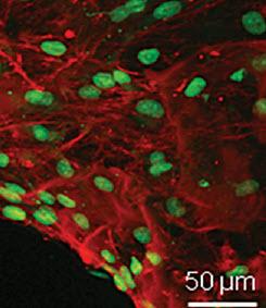 Proteínas de células madre del esqueleto cultivadas en una base plástica  (crédito: Ferdous Khan et al./Advanced Functional Materials)