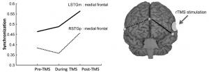 Incremento de sincronización (izquierda) de regiones de compensación  en el cerebro después de rTMS (derecha). (crédito: Robert A. Mason et al./Cerebral