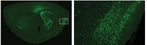 Virus inducido etiqueta optogenética de neuronas; derecha: acercamiento de área rectangular. (Crédito: Sheng-Jia Zhang et al./Science).