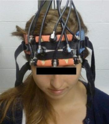 Medición de los efectos de la estimulación de la corteza prefrontal con TRNS. Los platos color naranja son dispositivos de espectroscopia de infrarrojo cercano, y utilizaron luz infrarroja para medir los cambios en el flujo sanguíneo.  (Crédito: Albert Snowball et al./Current Biology)