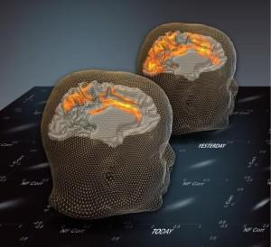 El efecto un día después de la activación cerebral: la imagen del cerebro presenta patrones espontáneos (estado de descanso) antes de una sesión de entrenamiento de neuroretroalimentación basado en fMRI. La parte frontal de la imagen presenta patrones espontáneos (estados de descanso) un día después d e la sesión, ilustrando el trazo de largo alcance en el entrenamiento. (Crédito: Weizmann Institute of Science)