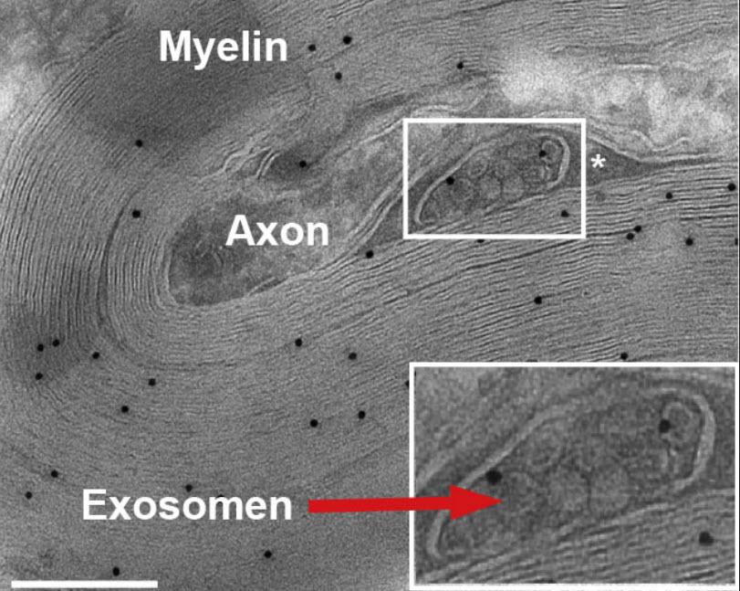 """Los exosomas (""""exosomen"""" en alemán) son pequeñas vesículas que contienen proteínas y ácidos nucleicos. Se encuentran por lo general en la cercanía de axones, en donde se encuentras idealmente posicionados para suministrar substancias protectoras. Escala: 50 micrones. (Crédito: Institute of Molecular Cell Biology)"""