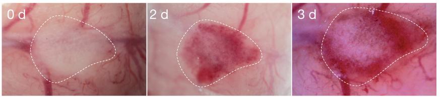 Generación de hígado humano con redes vasculares funcionales en vivo. Observación macroscópica de un iPSC-LBs humano trasplantado, mostrando aspersión de vasos sanguíneos humanos. Las áreas con puntos indican el iPSC-LBs humano trasplantado.  (Crédito: Takanori Takebe et al./Nature)