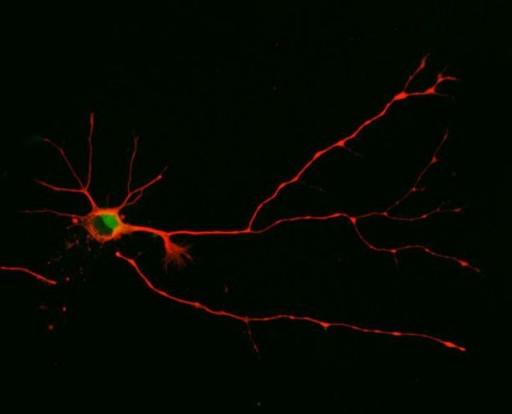Investigadores de la Universidad de Arizona descubrieron que una neurona formará múltiples axones, tal y como se muestra aquí, cuando se bloquea la versión corta de la molécula de señalización. (Crédito: Sara Parker/University of Arizona)
