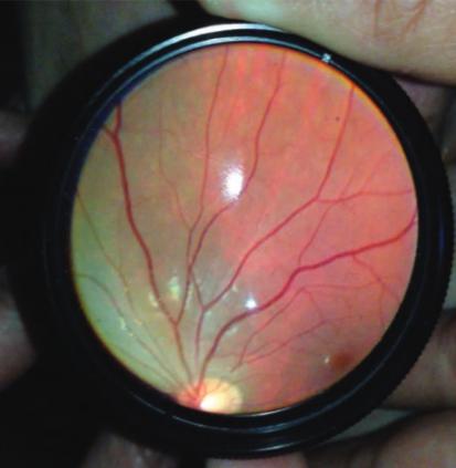 Nevus coroideos grandes fotografiados en el servicio de urgencias (el médico sostiene una lente externa frente al iPhone) (Crédito: Luis J. Haddock et al./Journal of Ophthalmology)