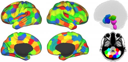 La conciencia surge de la comunicación entre distintas áreas del cerebro (se estudiaron 194 regiones de interés) y está principalmente ligada a la región cortico-cortical (izquierda y centro) y áreas no subcortical y cerebelosa (derecha).  (crédito: Martin M. Monti et al./PLoS Computational Biology)