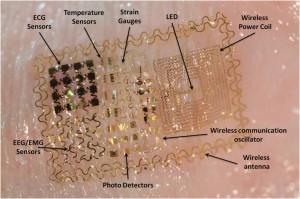 Arreglo de electrodos estirable y doblable que puede medir señales neuronales de forma no invasiva sin requerir la aplicación de un gel. (crédito: Coleman lab, UCSD)