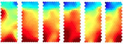 Células agresoras, que tienen el potencial de causar una enfermedad autoinmune, a las cuales se les aplica el tratamiento que las convierte en células protectoras. La expresión genética cambia gradualmente en cada estado del tratamiento, como se ilustra en los cambios de color en esta serie de mapas de calor. (Crédito: University of Bristol/Dr. Bronwen Burton)