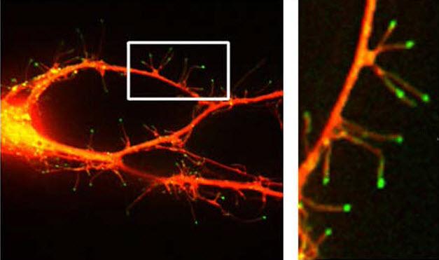 Microfotografía fluorescente de neuronas que muestran como la filapodia se extiende desde las dendritas. (crédito: Webb Lab/Vanderbilt)
