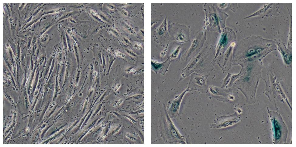 Investigadores del Instituto Salk descubrieron que la mutación de una proteína en el síndrome Werner, enfermedad que ocasiona envejecimiento prematuro, juega un papel central en la estabilización de la heterocromatina, la cual está formada por paquetes compactos, condensados, de ADN, sugiriendo que el desorden en la heterocromatina podría ser un factor clave en el envejecimiento. Esta imagen nuestra células humanas normales (izquierda) y células genéticamente modificadas por cientificos de Salk para servir de modelo del síndrome Werner (derecha), que muestra signos de envejecimiento, incluyendo su tamaño mayor. (Crédito: Salk Institute for Biological Studies)