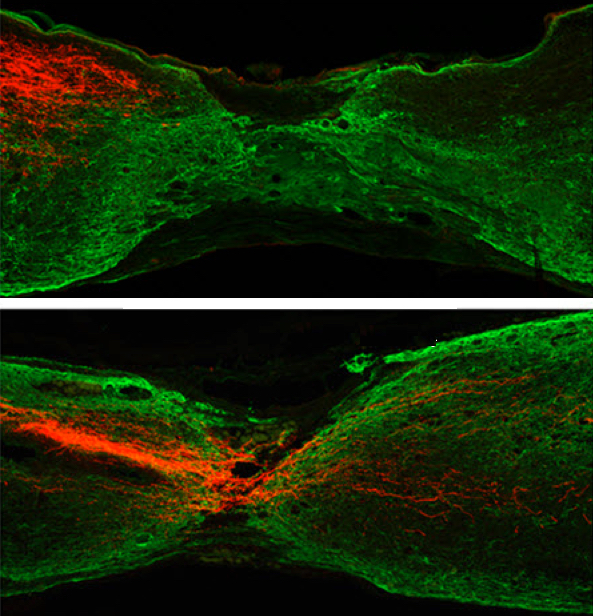 Científicos de HKUST cortan axones del tracto corticoespinal en ratones (color rojo). Un año después, proceden a eliminar el gen PTEN en el grupo experimental (abajo) pero no así en el grupo de control (arriba). La eliminación del gen PTEN dio como resultado una recuperación de los axones en siete meses, a diferencia del grupo de control. (Crédito: Kaimeng Du et al./The Journal of Neuroscience)