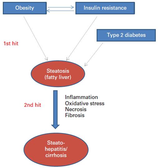 Modelo de hígado graso no alcohólico. (crédito: ILSI Europe)